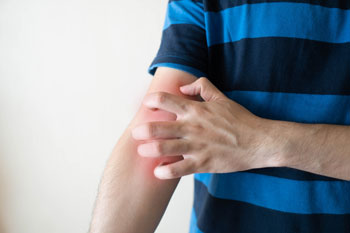 man-scratching-arm-having-itching-redness