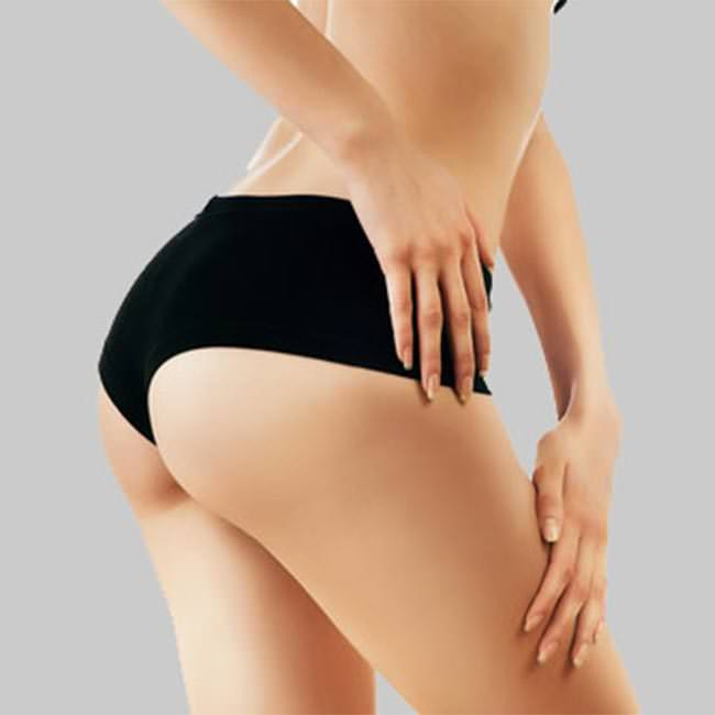 Ways to minimise the appearance and get rid of cellulite