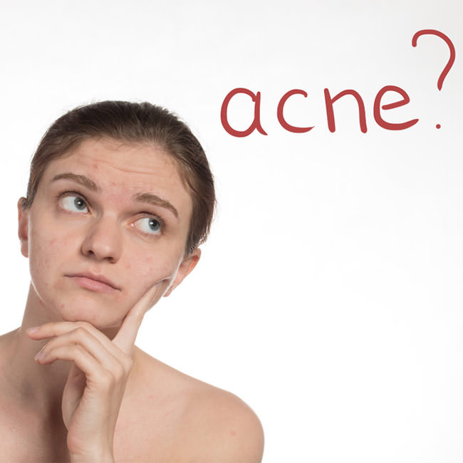 12 Frequently Asked Questions about Acne answered