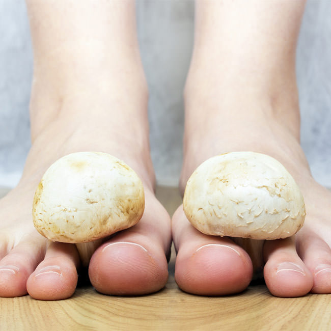 How to take care of Fungal Nail Infection naturally?