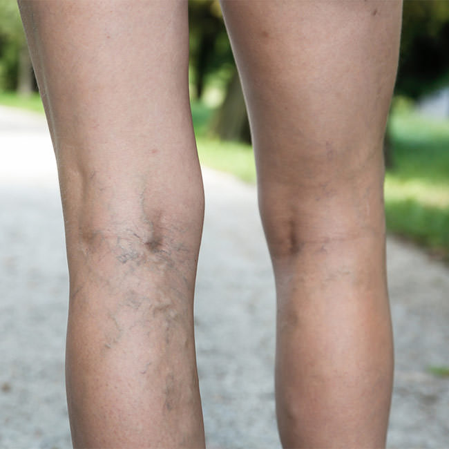 Prevent and get rid of Varicose Veins naturally