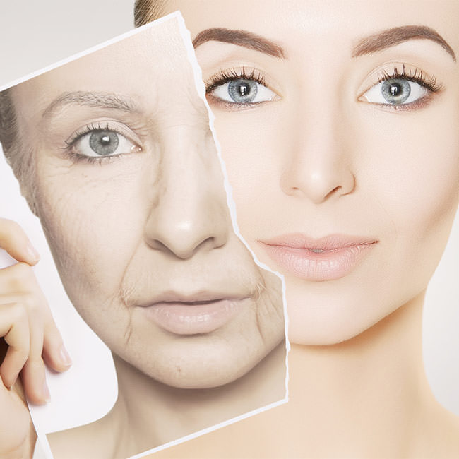 Anti-wrinkle solutions for more youthful skin