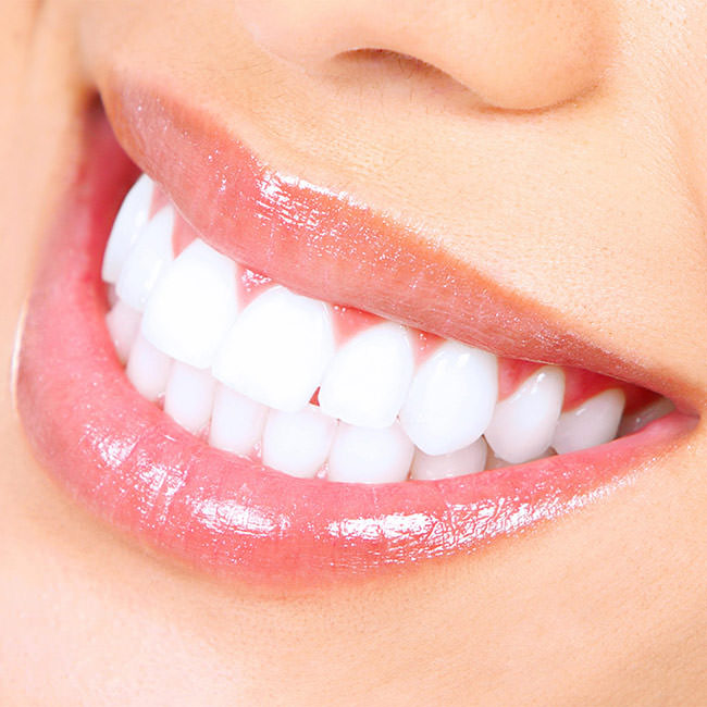 Pain free tricks for teeth whitening