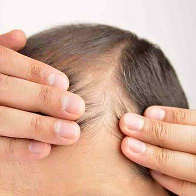 Thinning Hair 101 - All you need to know about hair loss and hair thinning