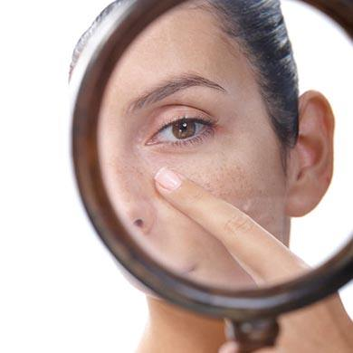 Dark Spots: Tips to handle and prevent them