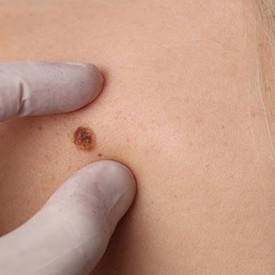 Skin Tags Removal