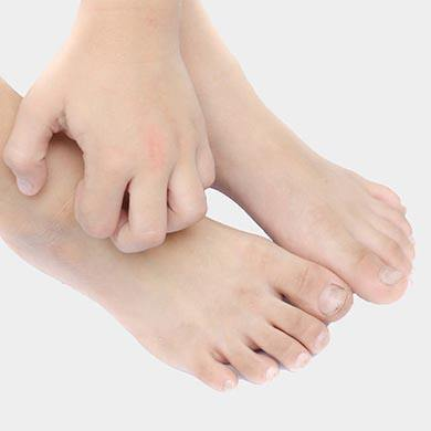 Remedies to soothe and prevent itchy skin