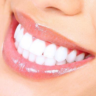 Pain free tricks for teeth whitening