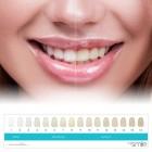 /images/product/thumb/mysmile-teeth-whitening-kit-7.jpg