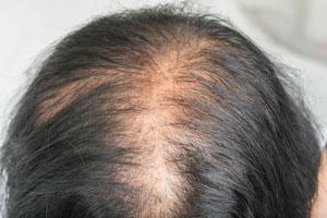 thin-hair-scalp-broken